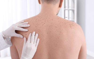 Family's History of Melanoma and What You Should Know