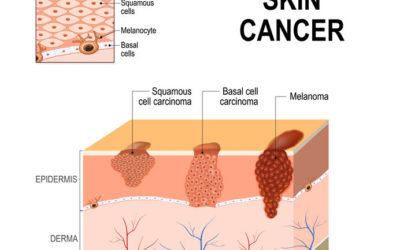 Types of Skin Cancer