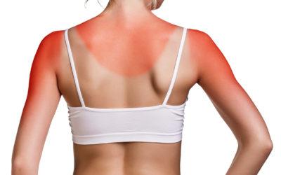 Preventing Skin Cancer After Sunburn