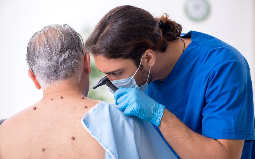 Are You at Risk for Skin Cancer?
