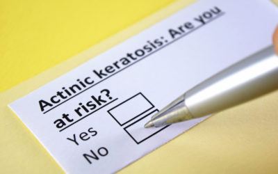 Is Actinic Keratosis Skin Cancer?