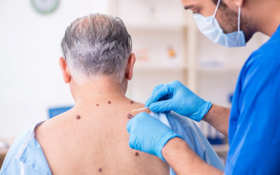Common Skin Growths: Malignant or Benign?