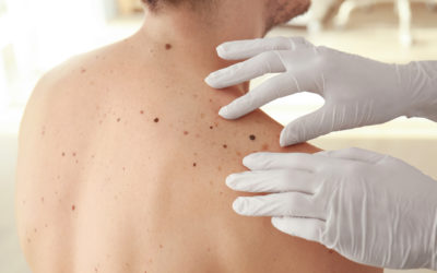 The Different Types of Skin Cancer